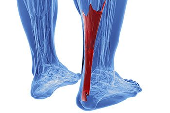 achilles-tendon