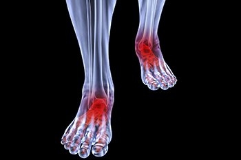 arthritic-foot-care