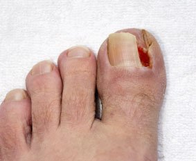 ingrown-toenail