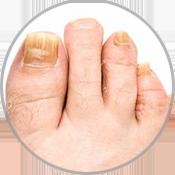 fungal-nails-circle